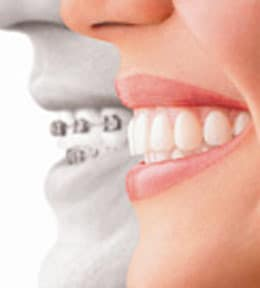 Mill Creek Family Dentistry Offers Invisalign®